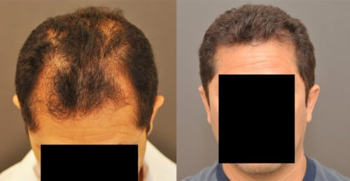 NeoGraft FUE hair transplant before and after