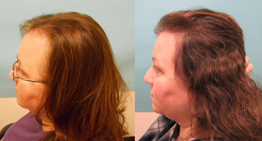 Female Hair Loss Treated With Oral Finasteride Hair Transplant Case Study News Mcgrath Medical
